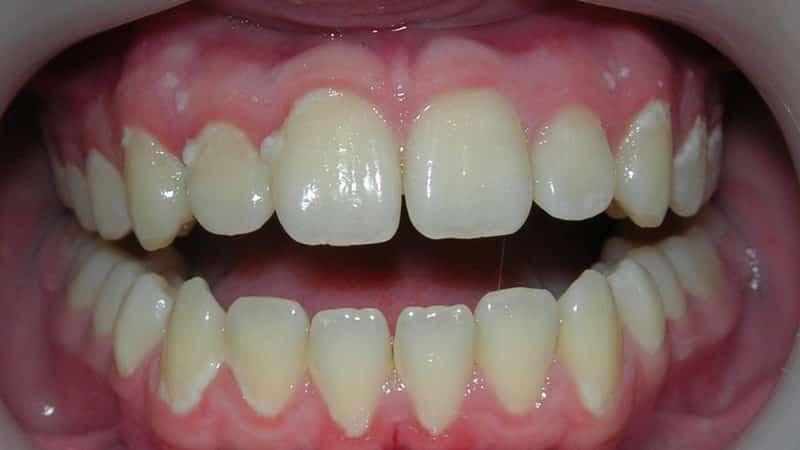 сколько по времени нужно чистить зубы