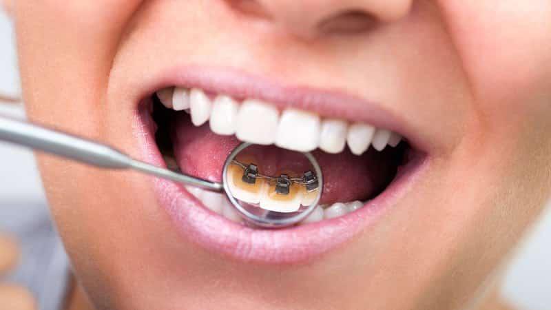 сколько стоит поставить брекеты на верхнюю челюсть