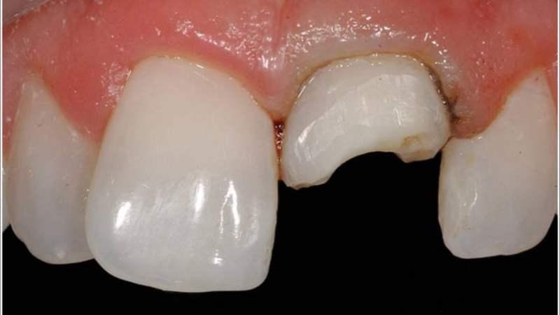 сломался зуб что можно сделать