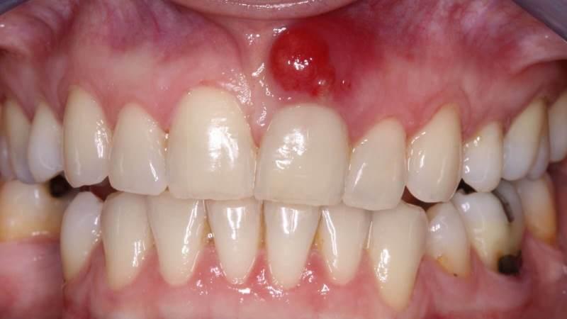 воспаление корня зуба лечение в домашних условиях