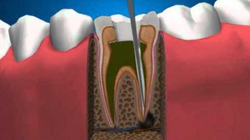 воспаление корней зубов лечение