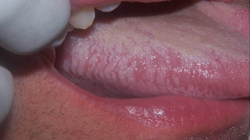 болезни слизистой рта