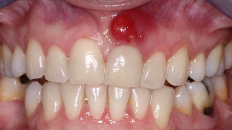 поражение слизистой оболочки полости рта
