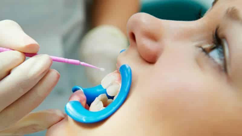 зубная паста восстанавливающая зубную эмаль