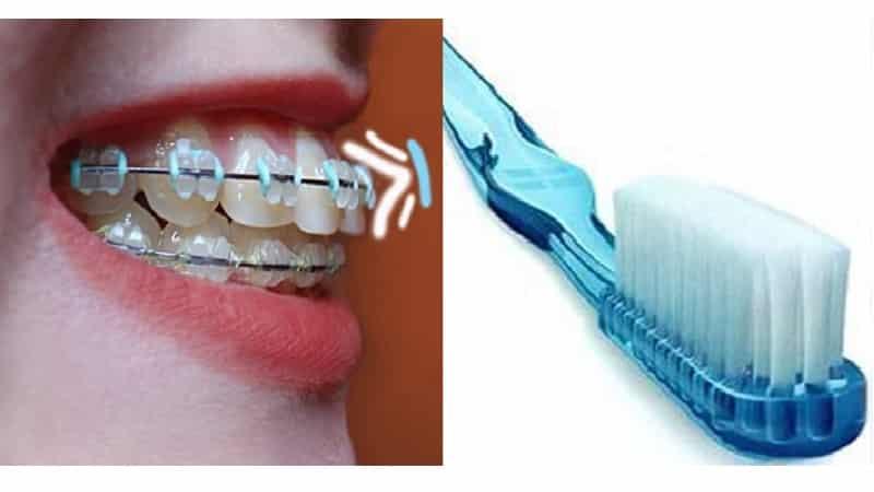 Зубная щетка для брекетов разновидности изделий для чистки