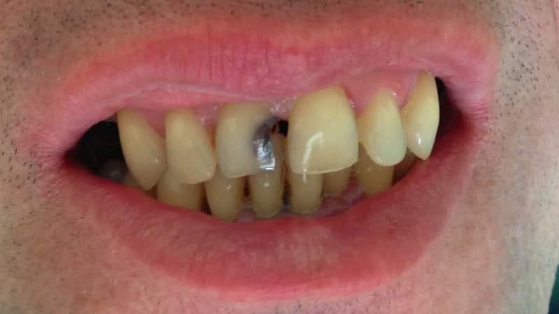 болит дырка в зубе что делать