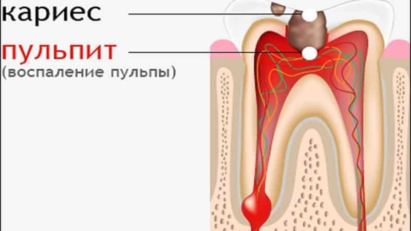 дырка в зубе сбоку