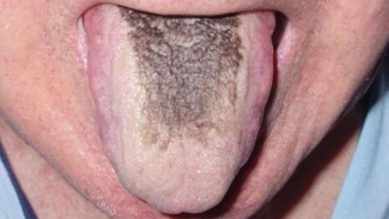 черное пятно на языке у человека