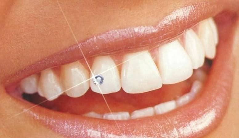 что это такое скайс на зуб фото