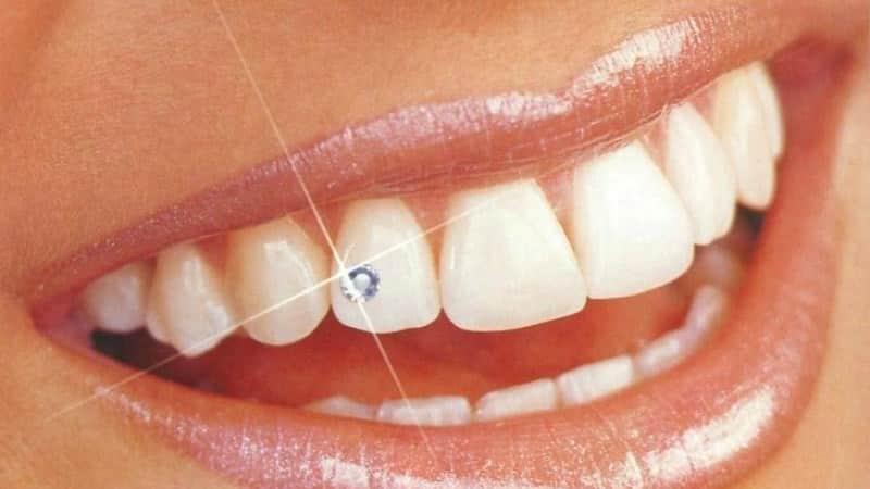Украшение зубов: виды, скайсы, стразы, уход