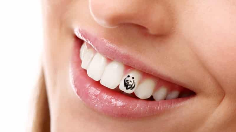 скайсы на зубы фото