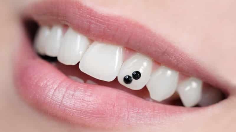 установка скайса на зуб фото