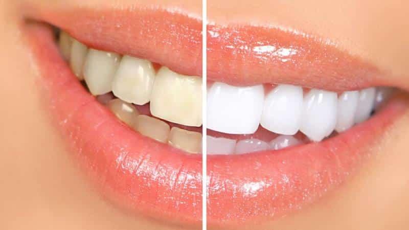 установка скайса на зуб видео