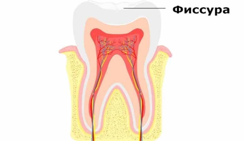 герметизация зубов у детей отзывы нужно ли
