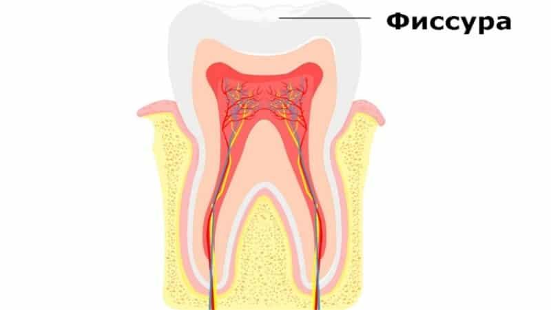 Как проводится герметизация зубов у детей