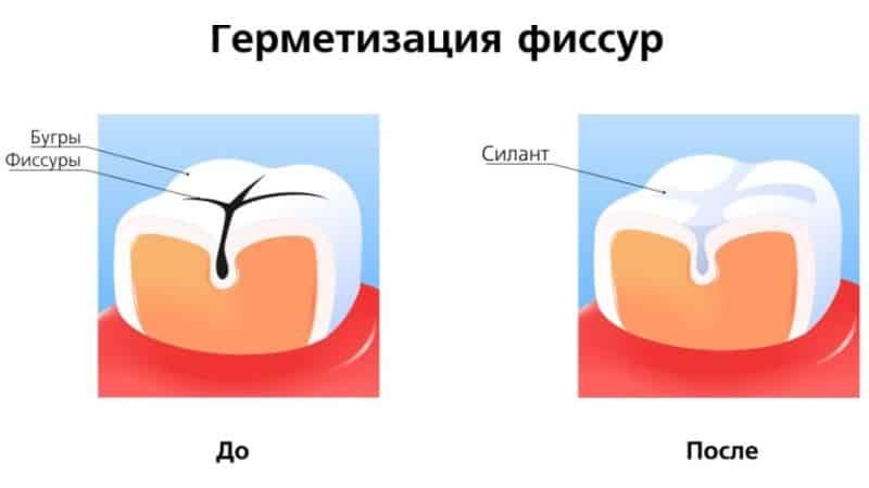 фиссуры зубов это