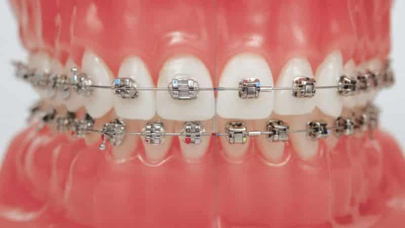 как чистить зубы с брекетами правильно видео