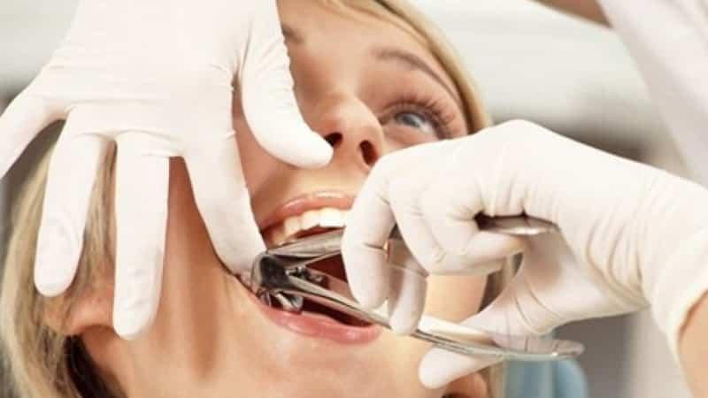 как долго болит десна после удаления коренного зуба
