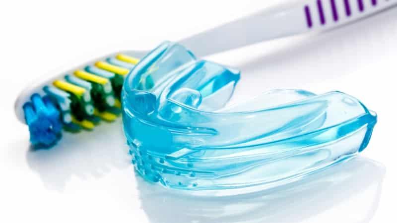 Как правильно подобрать капы для зубов