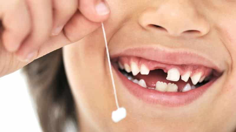 как вырвать коренной зуб в домашних условиях без боли