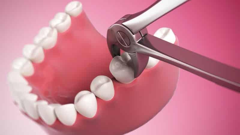 как самому удалить зуб
