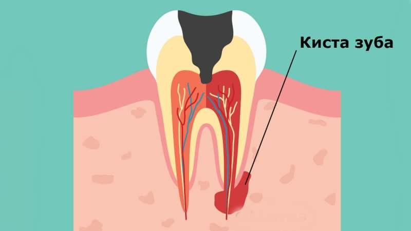 киста на корне зуба симптомы в каких случаях удаляется зуб