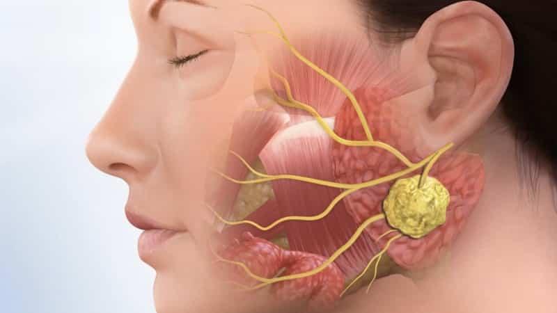заболевание слюнных желез симптомы