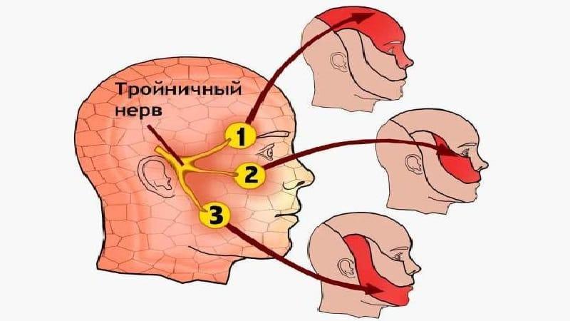 неврит лицевого нерва лечение в домашних условиях
