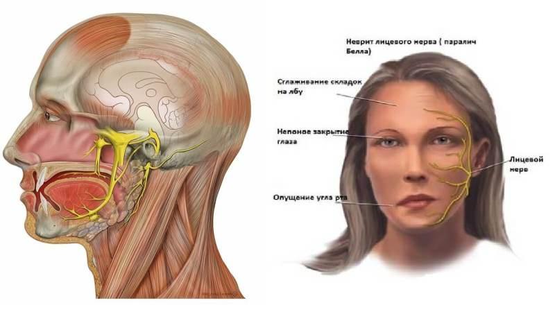 как лечить лицевой нерв в домашних условиях