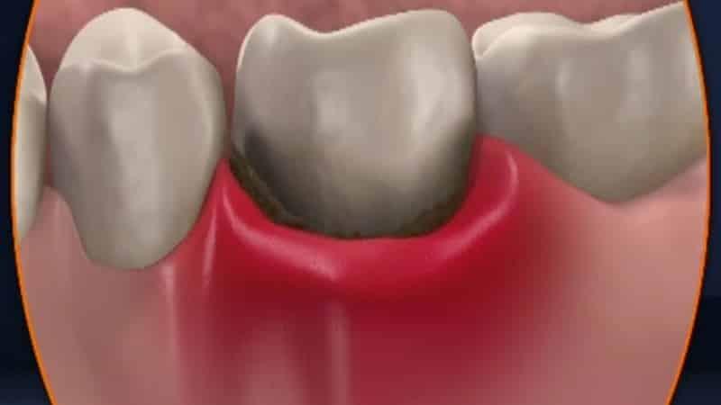 периостит верхній челюсти симптомы