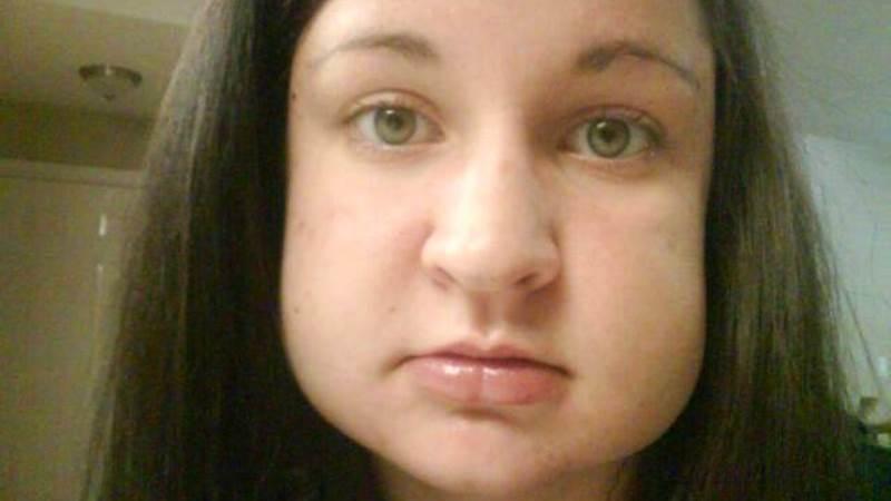 Периостит нижней (верхней) челюсти: симптомы, фото