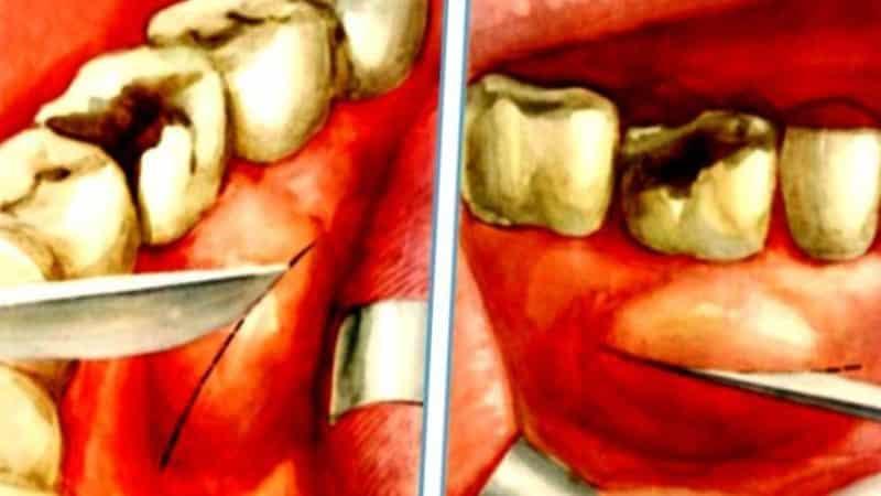 периостит челюсти фото