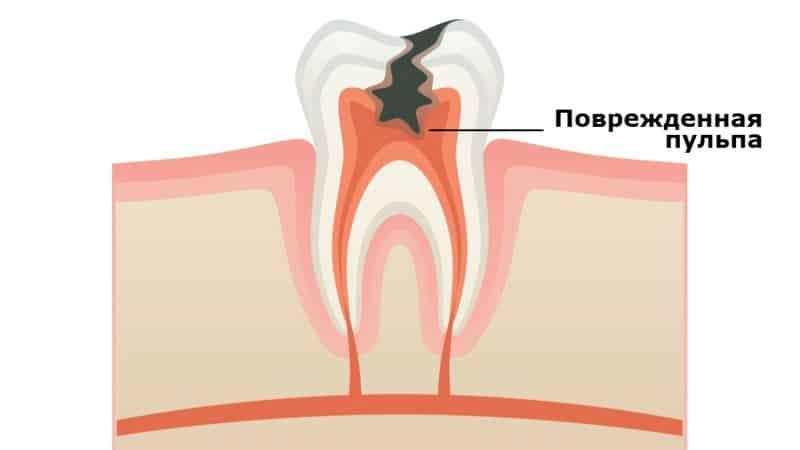 зубная пломба в домашних условиях