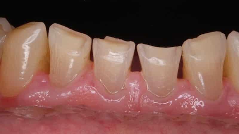 патологическая стираемость зубов лечение