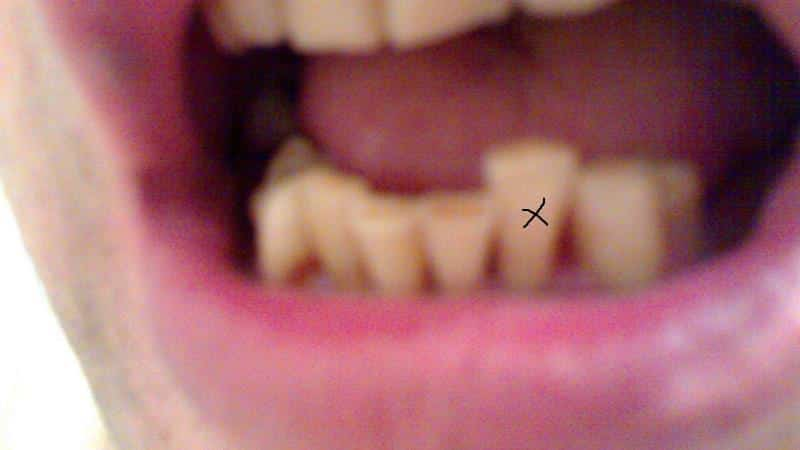 приснилось что шатается зуб