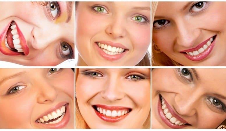 средства для отбеливания зубов в домашних условиях - отбеливающие средства для зубов