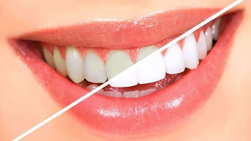 отбеливающее средство для зубов