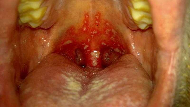 стоматит на миндалинах лечение
