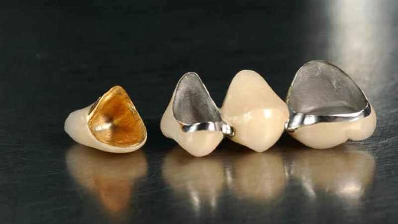 коронка на зуб сколько стоит