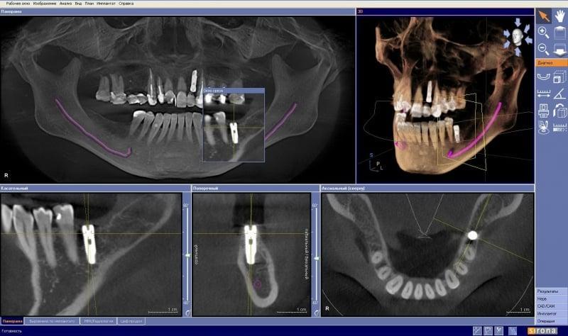 3д рентген зубов