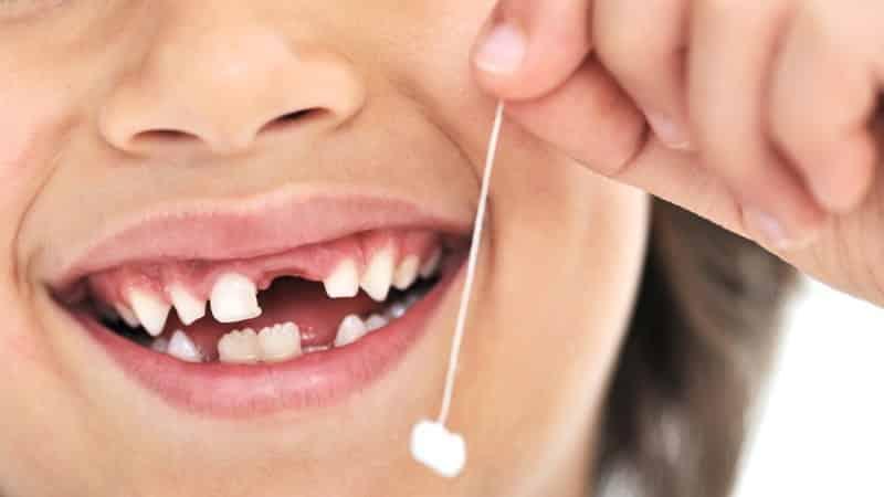 что делать с первым выпавшим молочным зубом