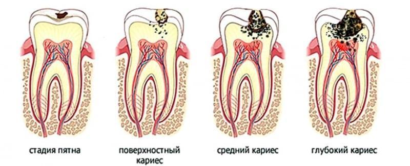 что такое кариес зубов фото