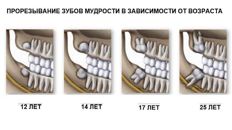 - до скольки лет растет зуб мудрости