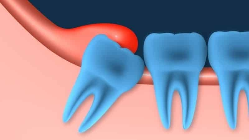 до скольки растут зубы