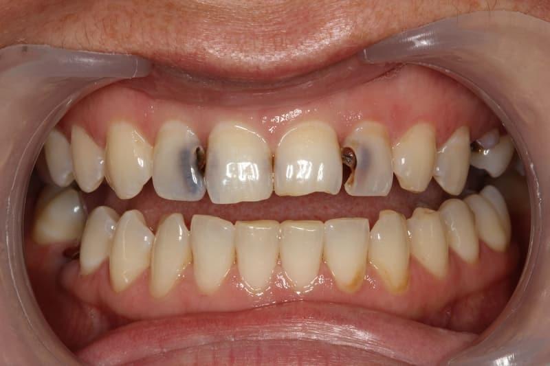 фото кариеса зубов