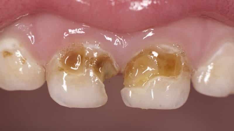 фторирование зубов что это такое