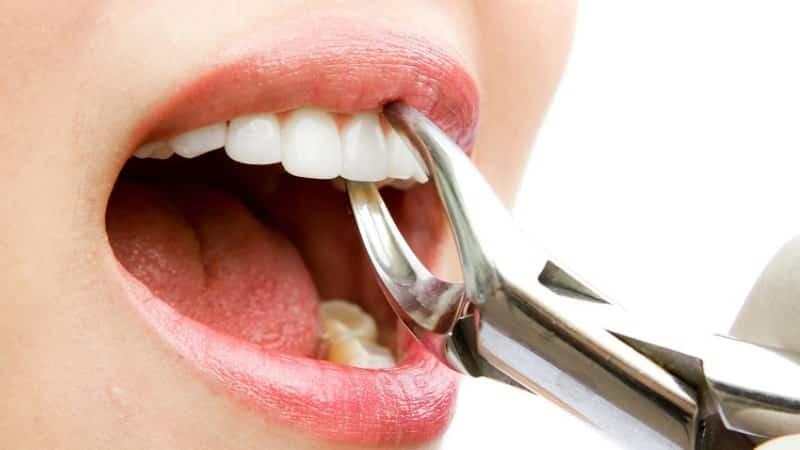 кровь изо рта по утрам лечение