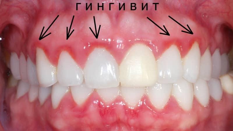 сколько раз в год нужно менять зубную щетку