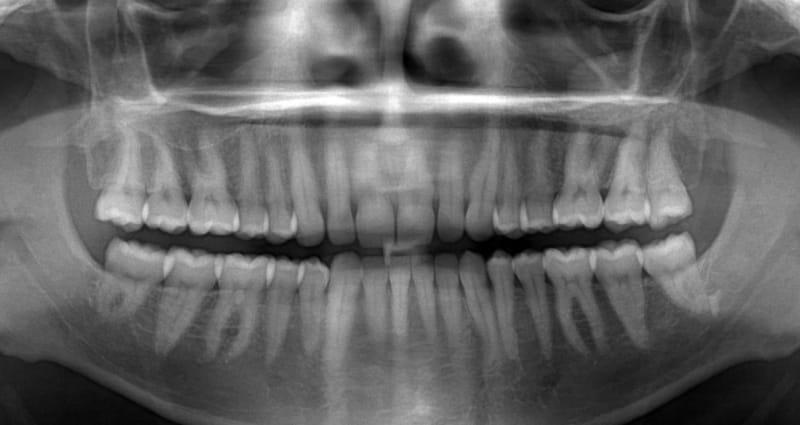 как называется рентген всех зубов