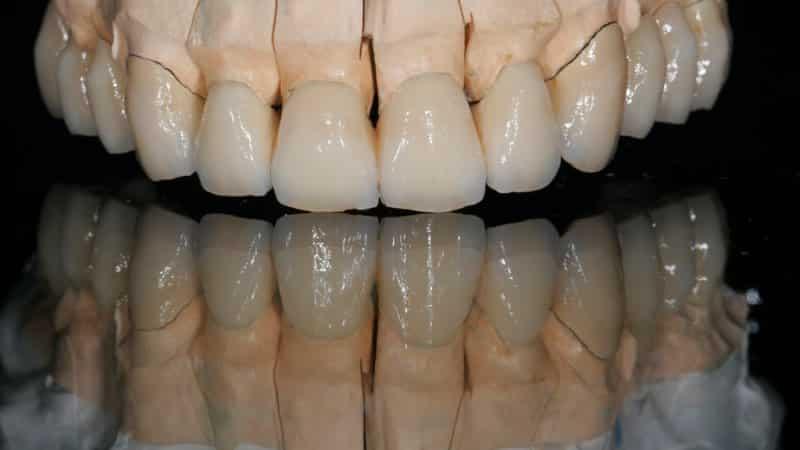 как ухаживать за зубами из металлокерамики
